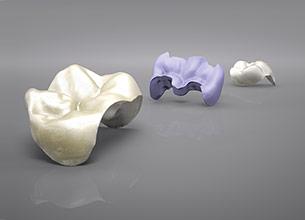 Частичная коронка зуба